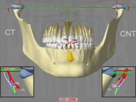 DAM Articular Pathology: reducible left dislocation