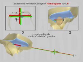 Physiological Condylar Rotation space (ERCP) / Centered Functional Rel