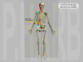 DAM Adaptive major: General Posture Pathology