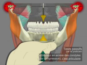 Mandibular tests differential Muscular-Articular