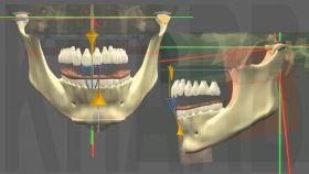 Traitement d�finitif par Multi-attache selon les orthodontistes