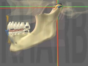 Traitement provisoire par goutti�re occlusale par les Occlusodontistes